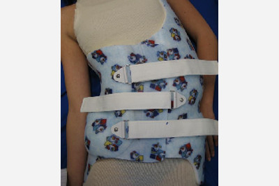 Charleston Bending Brace  - nocturnal for scoliosis  - Sunshine Prosthetics and Orthotics in Wayne NJ