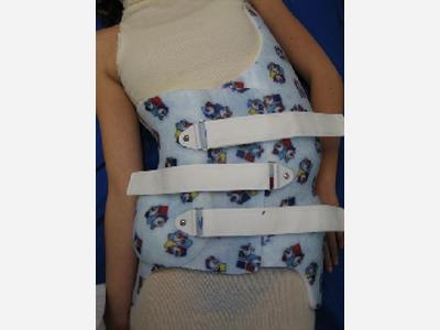 Charleston Bending Brace  - nocturnal for scoliosis  - Sunshine Prosthetics and Orthotics in Wayne NJ