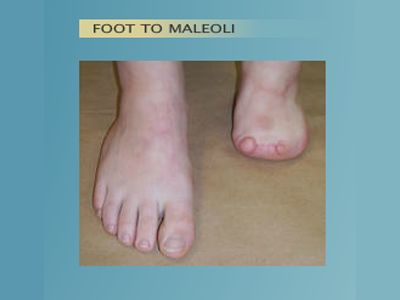 Alternative Prosthetic Services -  Foot to Maleoli before