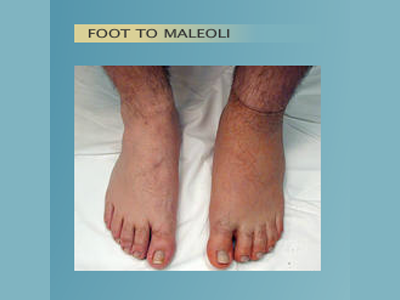 Alternative Prosthetic Services -  Foot to Maleoli before - replicating each patient's unique skin texture, color, and anatomy