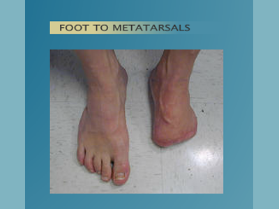 Alternative Prosthetic Services - Foot to Metatarsals before