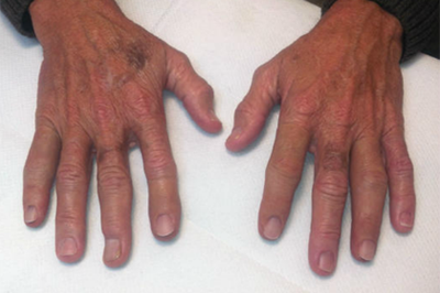Alternative Prosthetic Services four finger restoration After