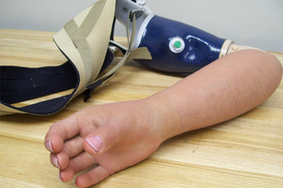 Alternative Prosthetic Services MYO electric hand restoration