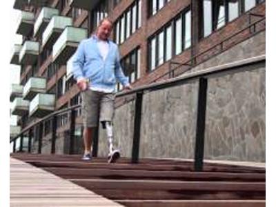Ossur Symbionic leg - unique intelligent terrain adaptation capabilities, built-in Artificial Intelligence (AI) systems and sophisticated motion sensors,  - Sunshine Prosthetics and Orthotics, Wayne, NJ