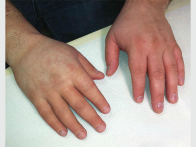 Alternative Prosthetic Services partial hand restoration After