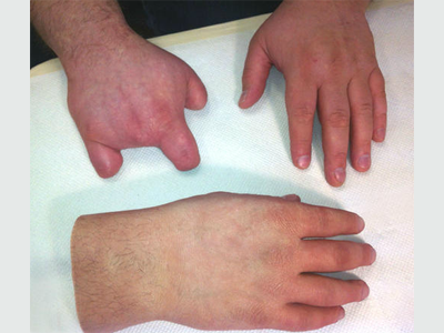 Alternative Prosthetic Services partial hand restoration Before