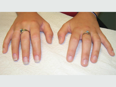 Alternative Prosthetic Services three finger restoration Afte