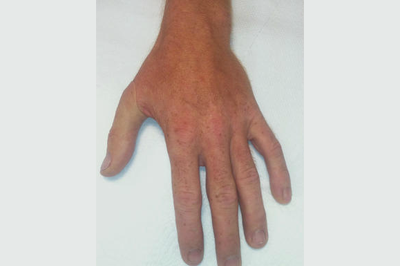 Alternative Prosthetic Services thumb restoration After