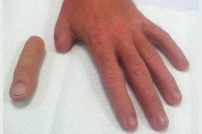 Alternative Prosthetic Services thumb restoration Before