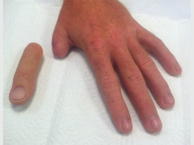Alternative Prosthetic Services thumb restoration Before