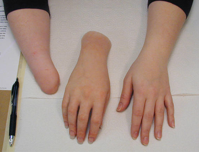 Alternative Prosthetic Services transradial hand restoration Before