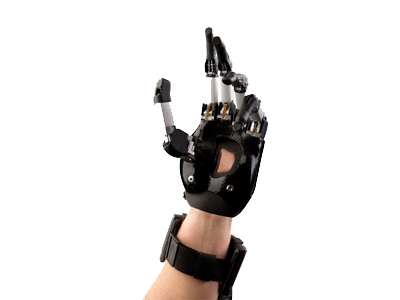 i-Limb Digits - available at Sunshine Prosthetics and Orthotics, Wayne NJ