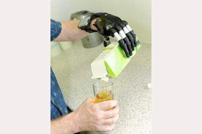 Pouring juice using i-Limb Digits - available at Sunshine Prosthetics and Orthotics, Wayne NJ