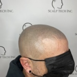 scalp micropigmentation | Scalp Tech Inc.