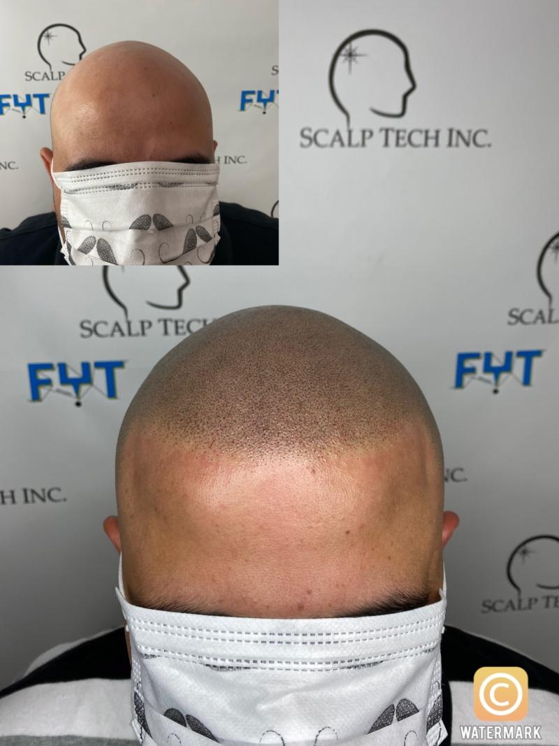 SMP | Scalp Tech Inc.