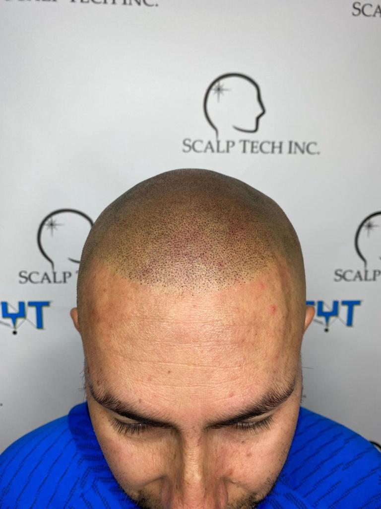 scalp micropigmentation   Scalp Tech Inc.