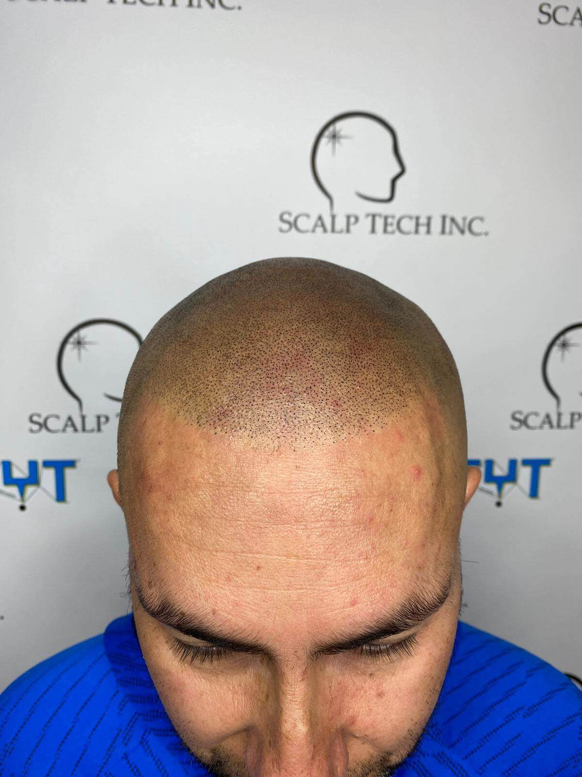 scalp micropigmentation | Scalp Tech Inc.