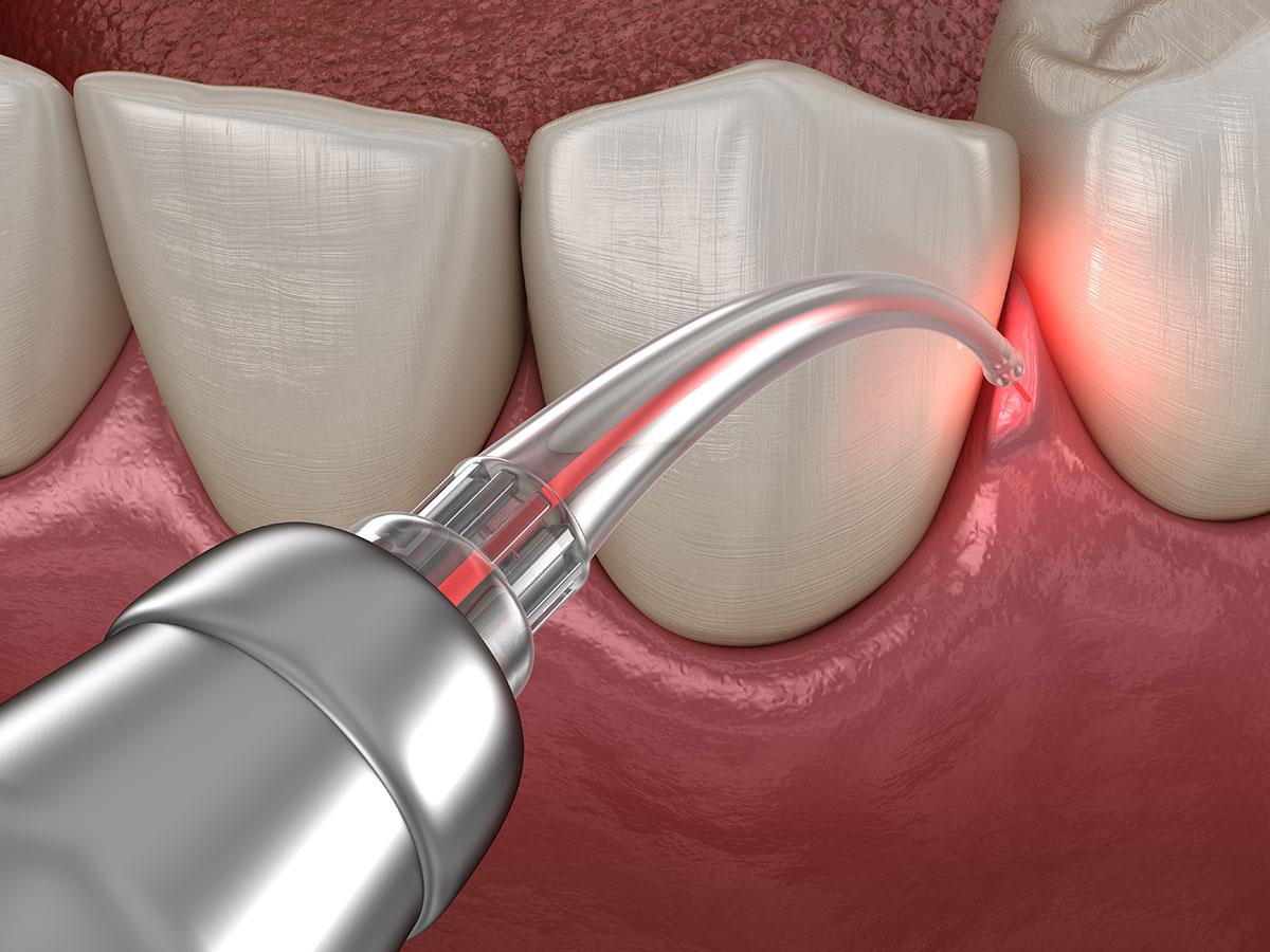 The Link Between Gum Disease and Heart Disease