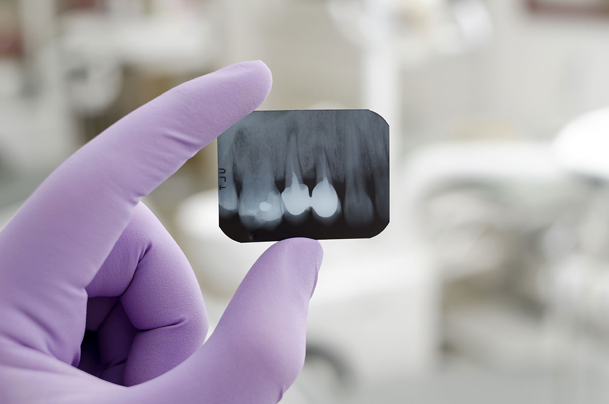 How to Prevent Gum Disease and Maintain a Healthy Smile