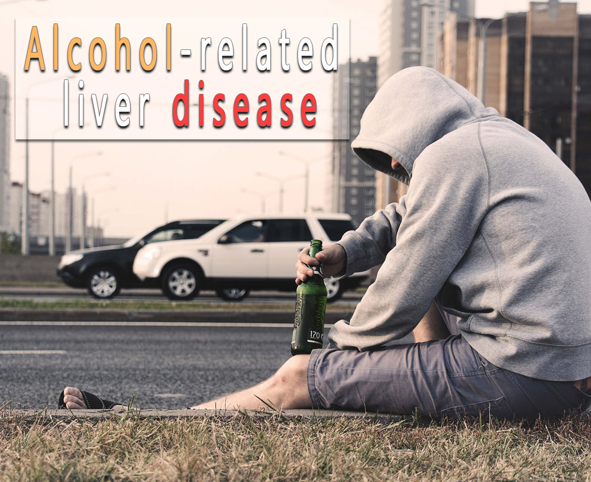 Alcohol-related liver disease - undermedication.com