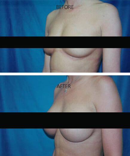 Breast Augmentation Ashville NC