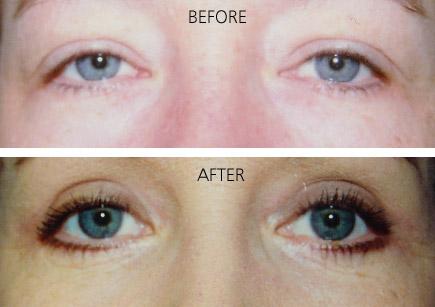 Eye Lid Surgery Asheville