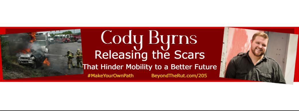 Cody Byrns Burn Survivor Motivational Speaker