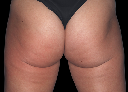Emtone_PIC_001-After-buttock-female-Marc-Salzman-MD-4TX_412x296_1589436992_original