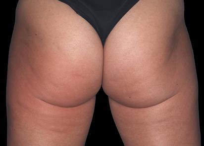 Emtone_PIC_001-After-buttock-female-Marc-Salzman-MD-4TX_412x296_1589436992_original