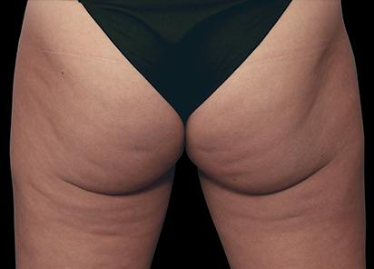 Emtone_PIC_001-Before-buttock-female-Marc-Salzman-MD_412x296_1589436994_original