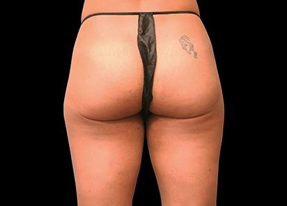 Emsculpt_PIC_014-Before-female-Brian-Kinney-MD__412x296px_1589434572_original