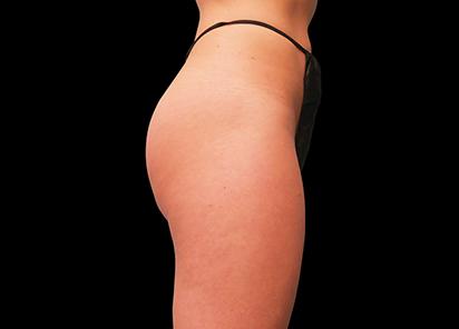 Emsculpt_PIC_016-After-buttock-female-Brian-Kinney-MD-4TX__412x296px_1589434578_original