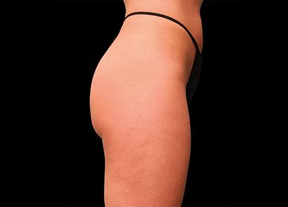 Emsculpt_PIC_016-Before-buttock-female-Brian-Kinney-MD__412x296px_1589434579_original