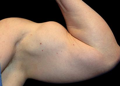 Emsculpt_PIC_074-after-arms-male-Reminder-Saluja-3W-4TX_412x296_1589434132_original