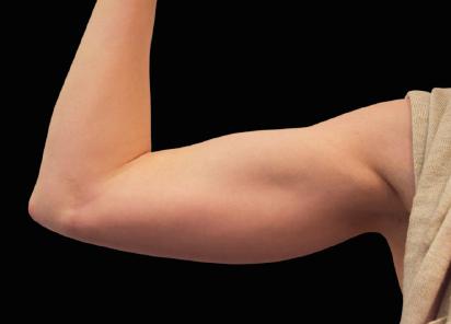 Emsculpt_PIC_078-After-biceps-female-Reminder-Saluja-MD-md-4TX__412x296px_1589434141_original