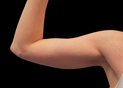 Emsculpt_PIC_078-Before-biceps-female-Reminder-Saluja-MD-md-4TX__412x296px_1589434142_original