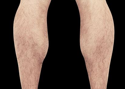 Emsculpt_PIC_083-After-calves-male-Reminder-Saluja-MD-4TX_412x296_1589435001_original