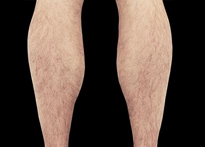 Emsculpt_PIC_083-Before-calves-male-Reminder-Saluja-MD_412x296_1589435002_original