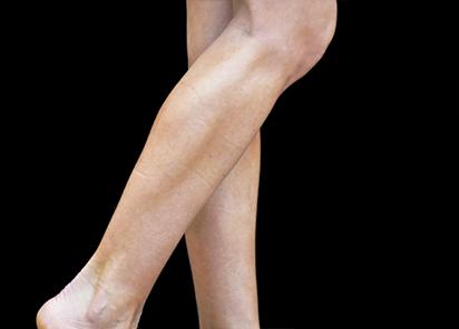 Emsculpt_PIC_084-After-calves-female-Reminder-Saluja-MD-4TX_412x296px_1589359124_original