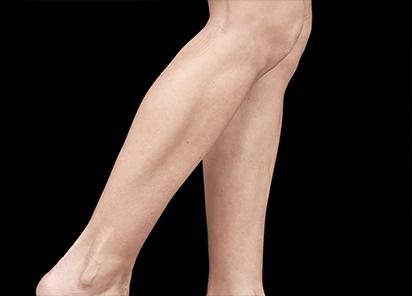 Emsculpt_PIC_084-Before-calves-female-Reminder-Saluja-MD_412x296px_1589359125_original