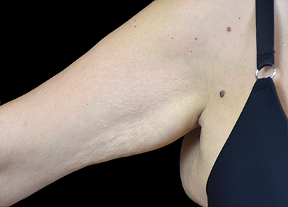 Emtone_PIC_005-After-arm-female-BTL-Aesthetics-4TX_412x296_1589436816_original