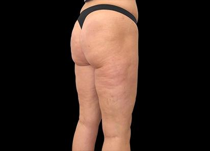 Emtone_PIC_010-After-buttock-female-Giulia-Bianchi-3TX_412x296_1589783322_original