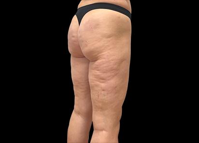 Emtone_PIC_010-Before-buttock-female-Giulia-Bianchi_412x296_1589783326_original