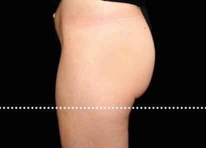 Emsculpt_PIC_020-After-buttock-female-Suneel-Chilukuri-MD-4TX__412x296px_1589434582_original