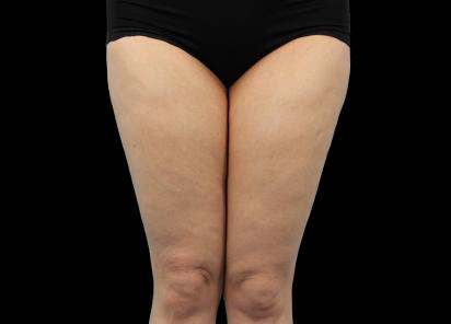 Emtone_PIC_012-After-legs-female-Dr-Hayre_412x296_1589785403_original