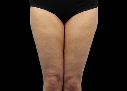 Emtone_PIC_012-Before-legs-female-Dr-Hayre_412x296_1589785405_original