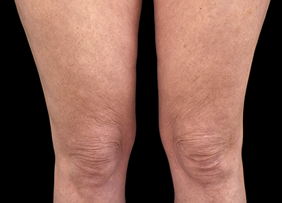 Emtone_PIC_025-After-legs-female-BTL-Aesthetics-4TX_412x296_1589437105_original