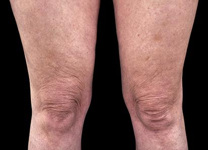 Emtone_PIC_025-Before-legs-female-BTL-Aesthetics_412x296_1589437106_original