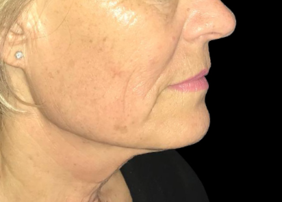 Exilis_Ultra_360_PIC_108-After-face-neck-female-Jaye-Bird-Aesthetics-Clinic-4TX_412x296px_1589888595_original