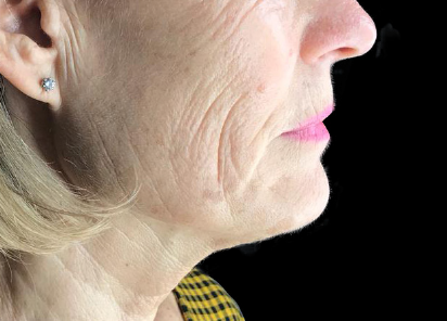Exilis_Ultra_360_PIC_108-Before-face-neck-female-Jaye-Bird-Aesthetics-Clinic_412x296px_1589888597_original